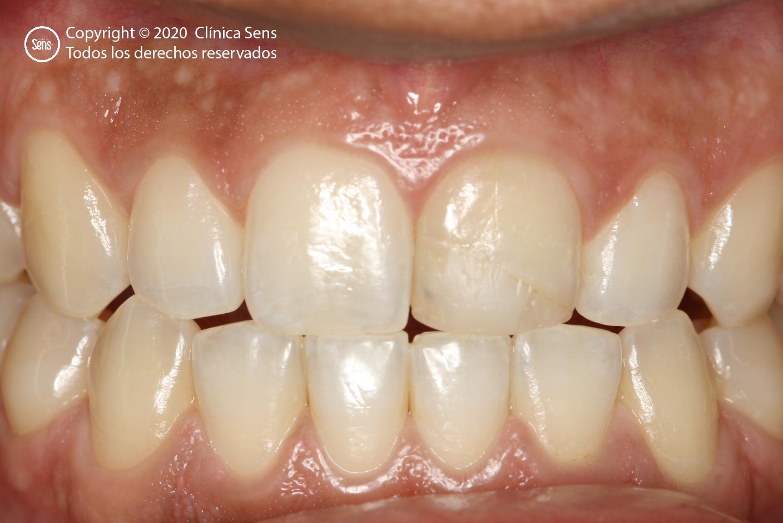 Implantes Dentales CLÍNICA SENS - Caso Corona de Alta Complejidad 1