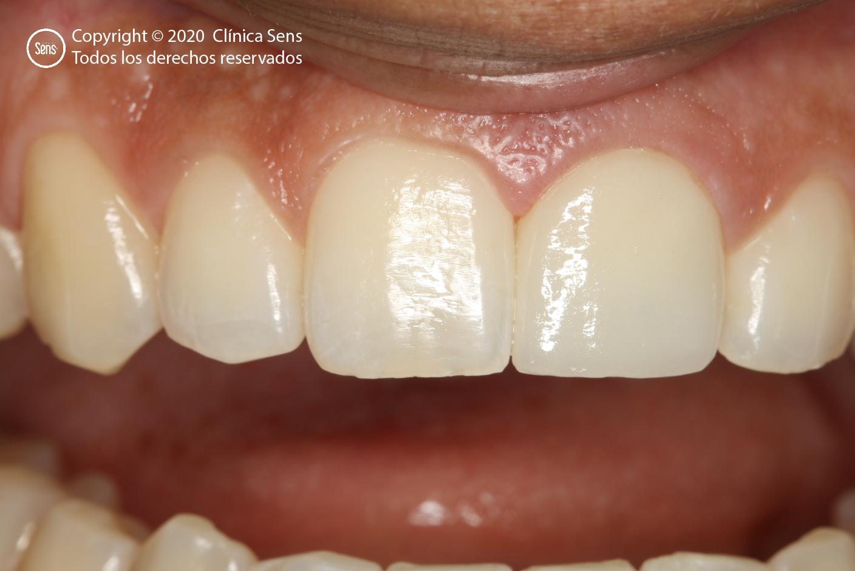 Implantes Dentales CLÍNICA SENS - Caso Corona de Alta Complejidad 3